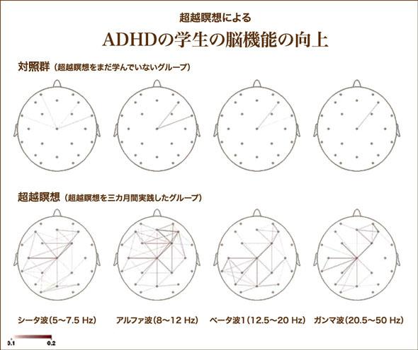 ADHD_Brain_Functioning_and_Transcendental_Meditation_Practice_01