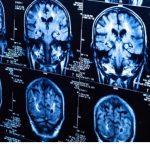 瞑想中に起こる超越の体験と脳生理の研究